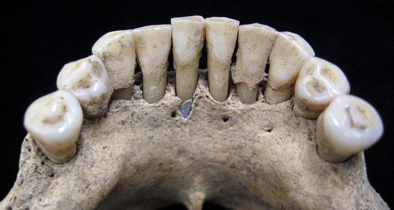 1000-летний зубной камень раскрыл тайну старинных рукописей