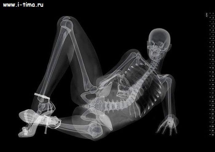 Рентген фото