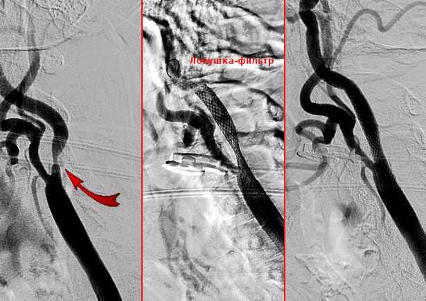 этапы стентирования внутренней сонной артерии
