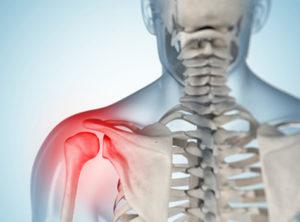 Нарушение совпадения поверхностей сустава внутрисуставное введение лек
