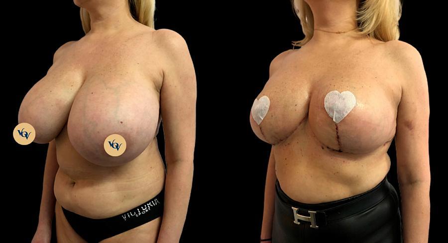 редукция грудных желез