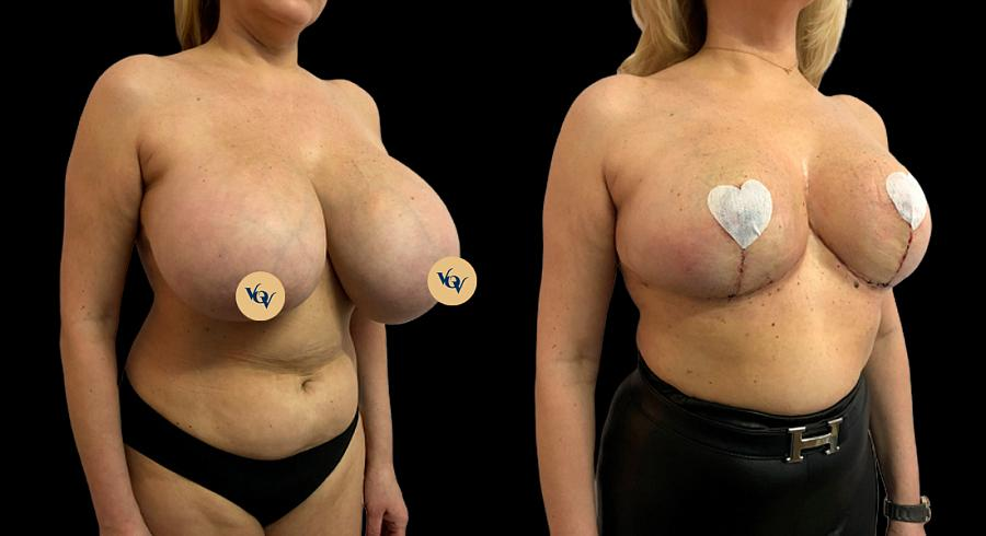 фото до и после проведения операции на женской груди по уменьшению