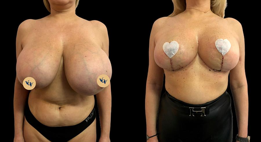 результат проведённой операции по редукционной маммопластике