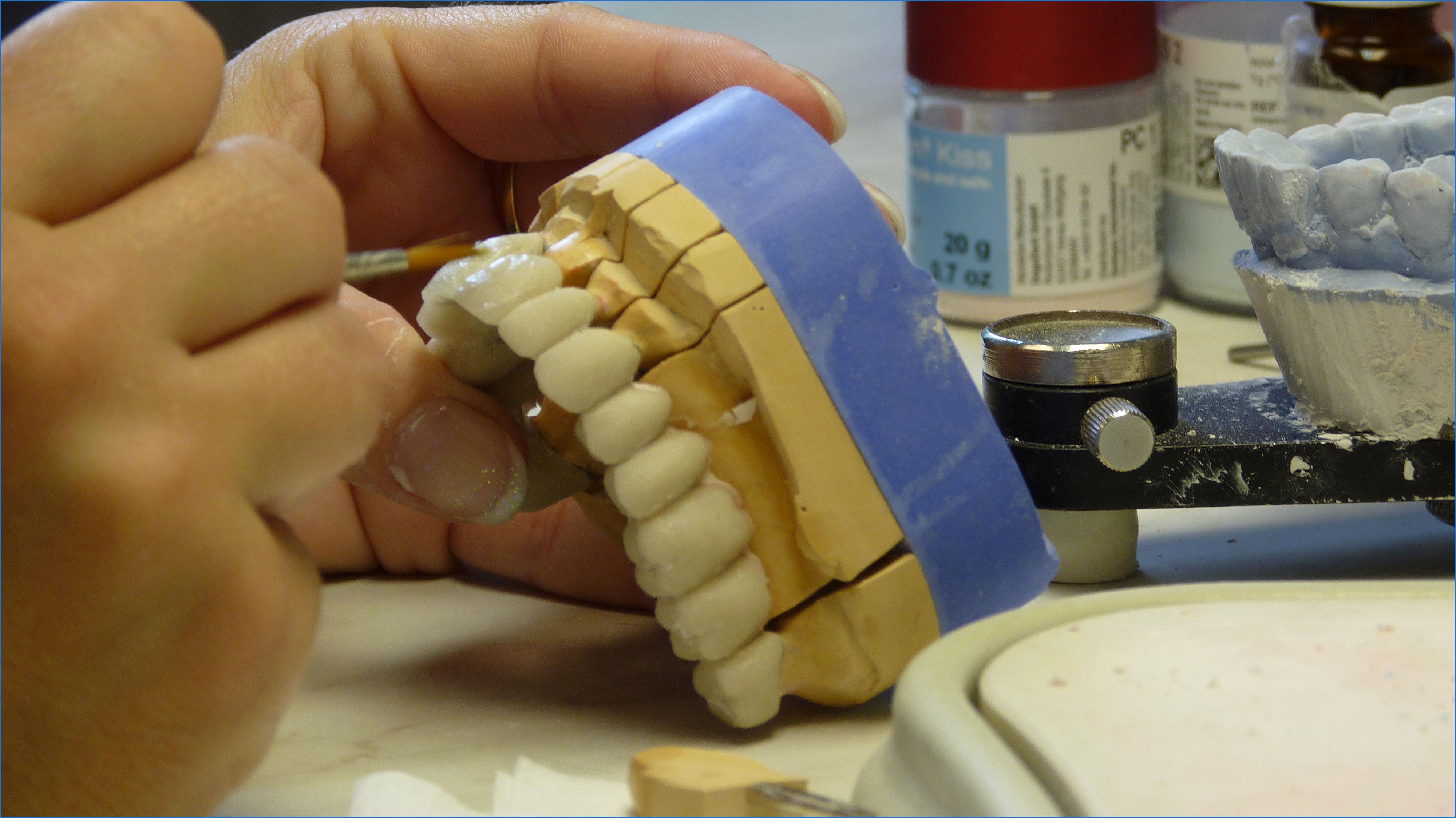 изготовление керамических коронок