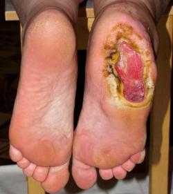 Трофическая язва пяточной области при диабете