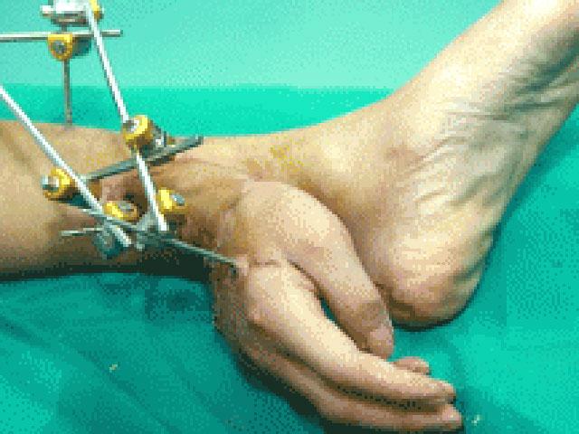Рука и нога в жопе фото 123-845