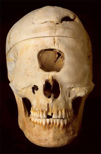 Dwarf elephant skull