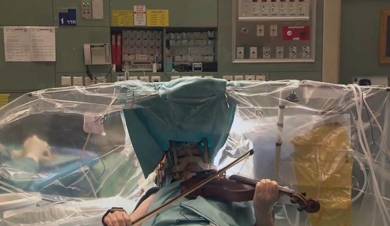 Женщина играла на скрипке, пока врачи делали ей операцию на мозге. CVAVR AVR CodeVision cvavr.ru