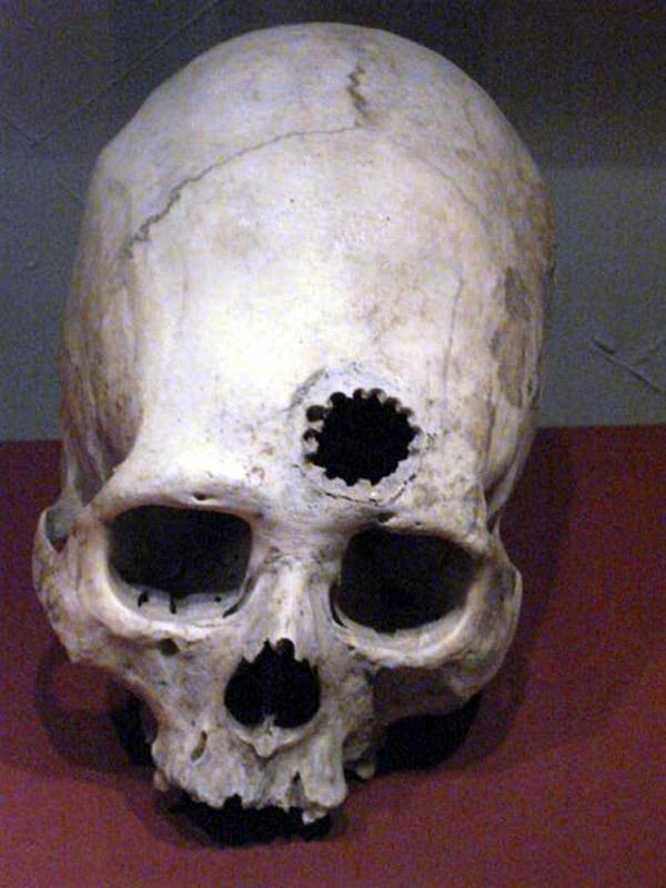Древние черепа с дырками