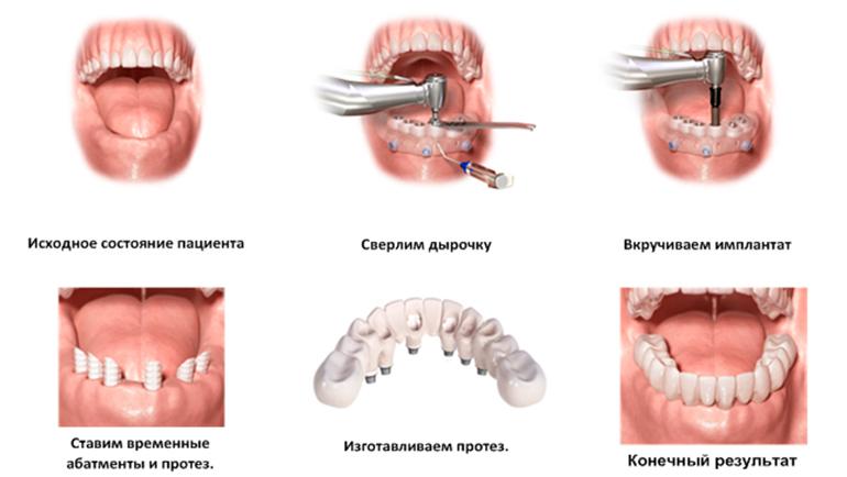 Имплантация зубов | Земля - Хроники жизни: http://earth-chronicles.ru/news/2016-11-27-98692
